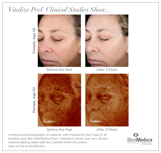 Skin Medica Peel System