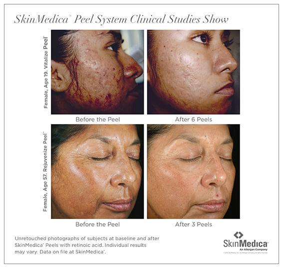 Skin Medica Peel Irvine